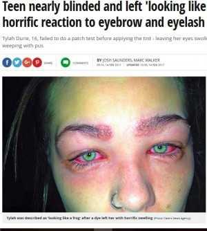 人気の「眉ティント」で危うく失明しかけた16歳少女(豪)
